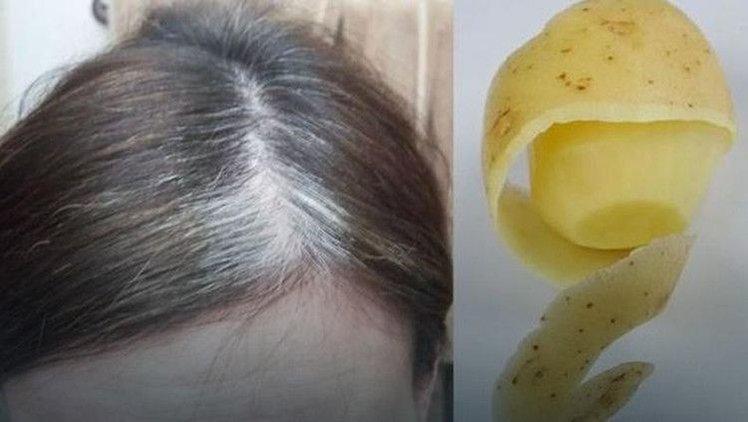 problem wypadających włosów przyczyny